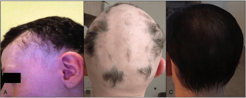 hair growth solutions