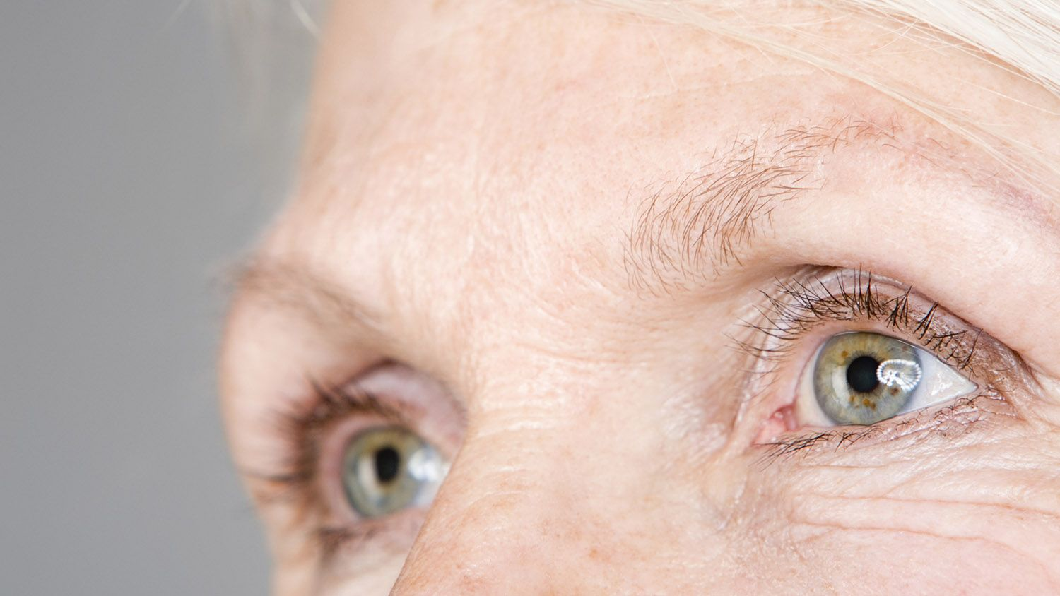 Have Thinning Eyebrows There Might Be A Medical Reason Behind It