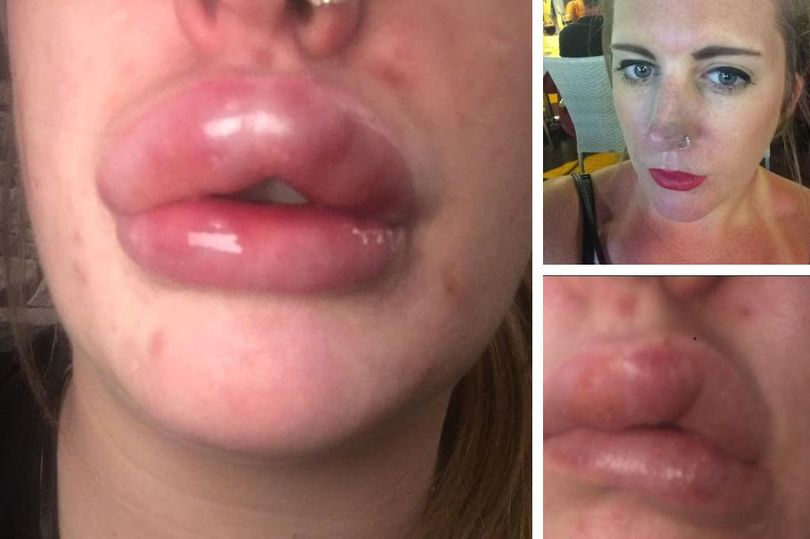 botched lip fillers